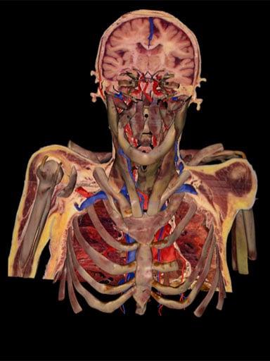 Susan Potter's upper body