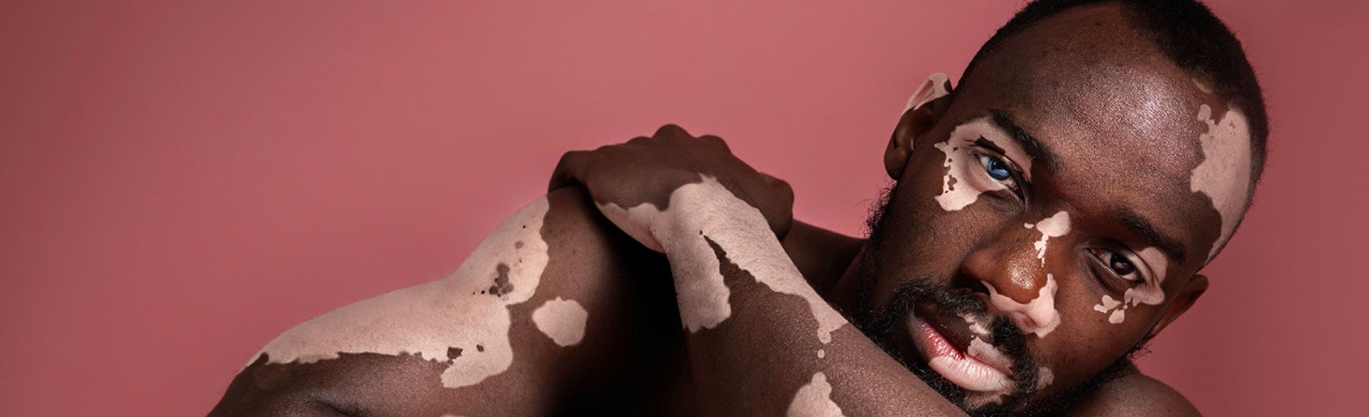 causes-of-vitiligo-1